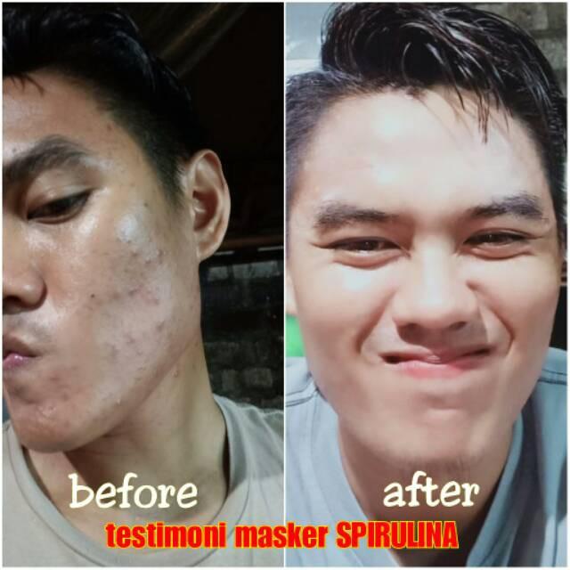 Masker Spirulina Tiens | WA 082187279098